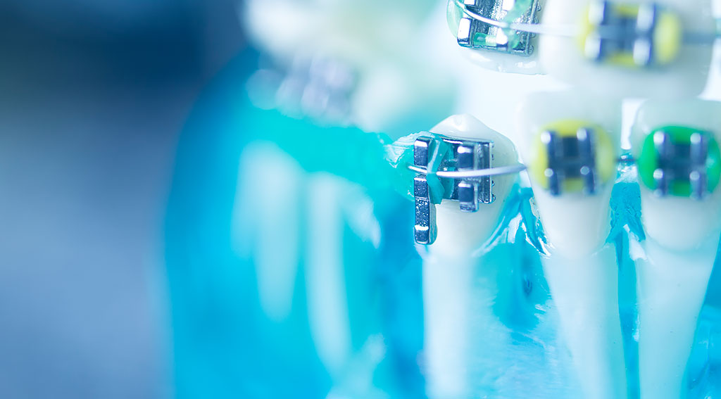 矯正歯科治療中の知識