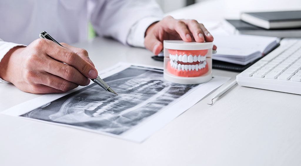 矯正歯科治療の費用