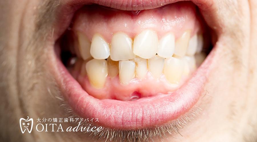 歯がデコボコ