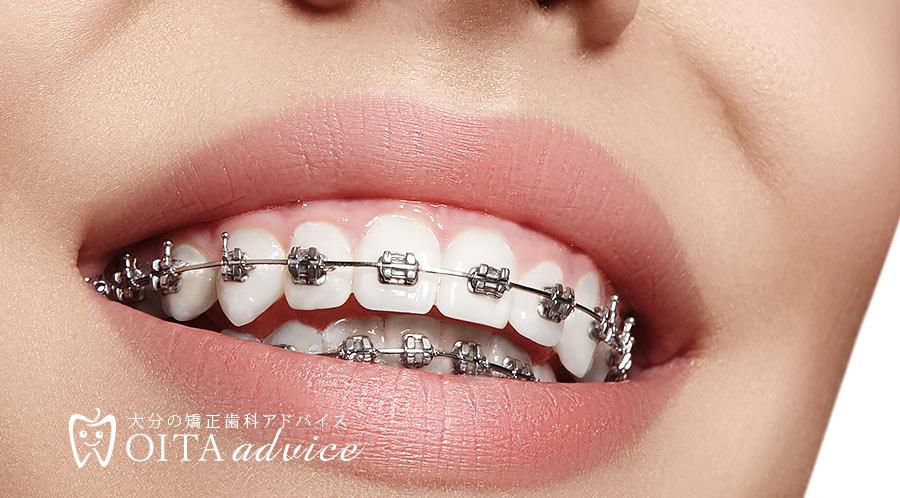 矯正歯科のリスク